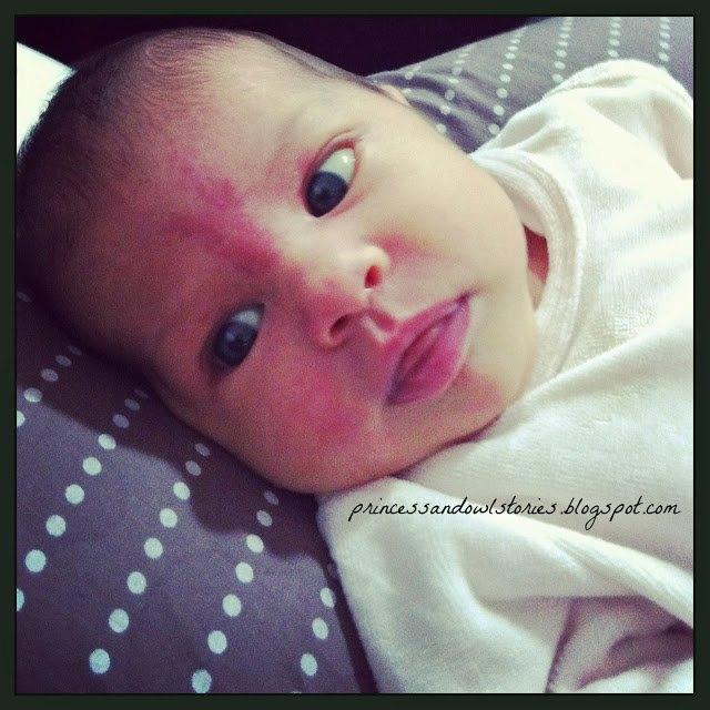 mi bebe recien nacido tiene una mancha roja en la frente
